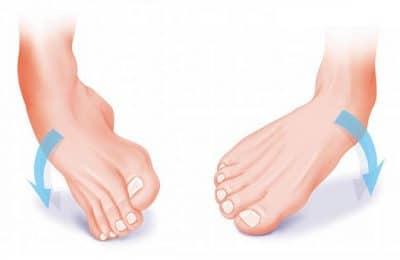 torcao no tornozelo - Antiinflamatório para Torção no Tornozelo, nomes, Tratamento