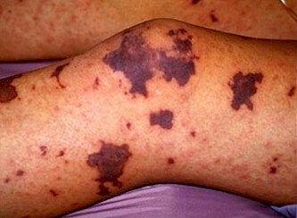 purpura na pele - Purpura na Pele, Entenda o caso, e o Tratamento