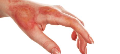 queimadura na pele 470x211 - Pomada para queimadura, nomes, Tratamento